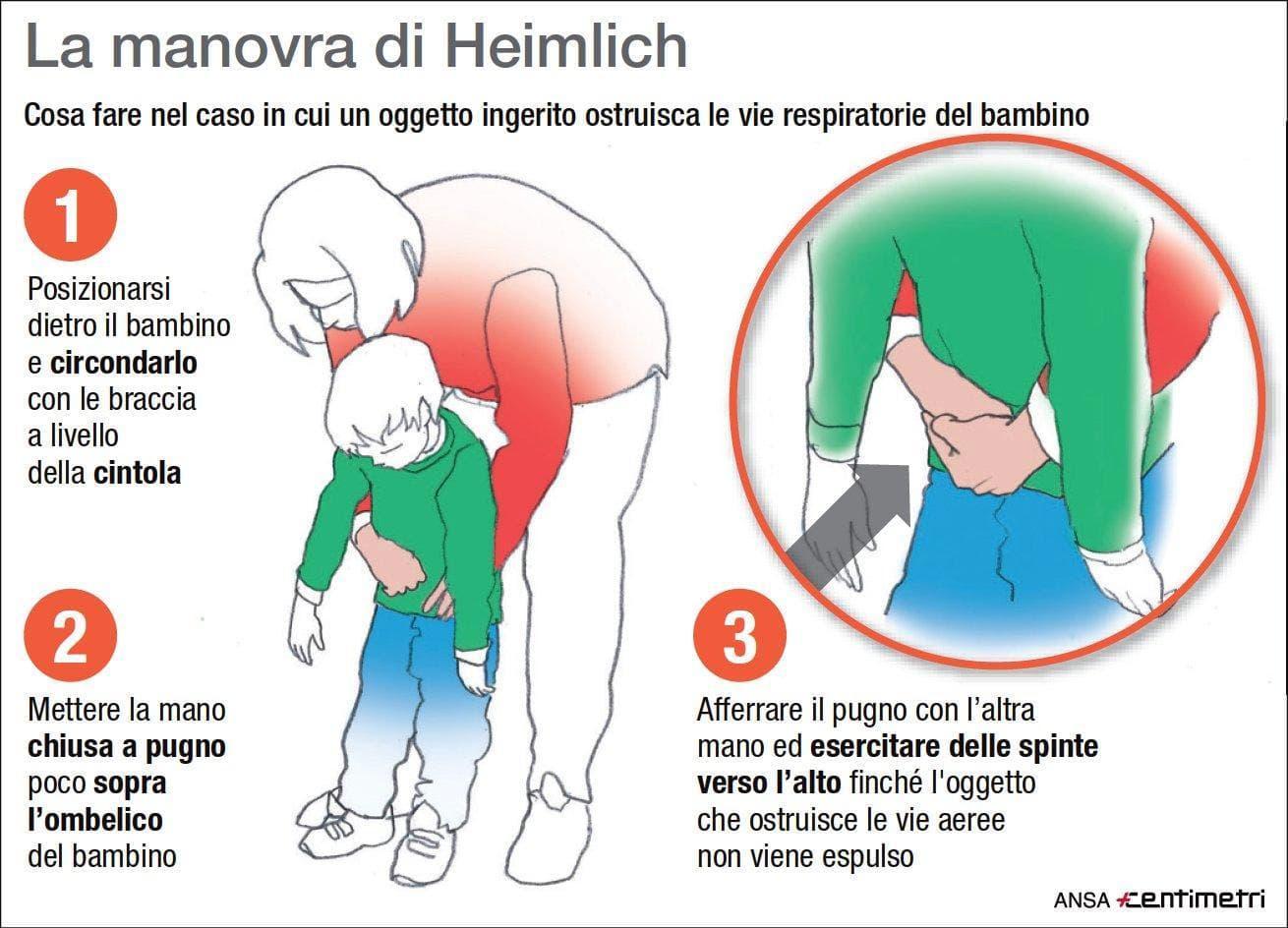 manovra heimlich ansa-2
