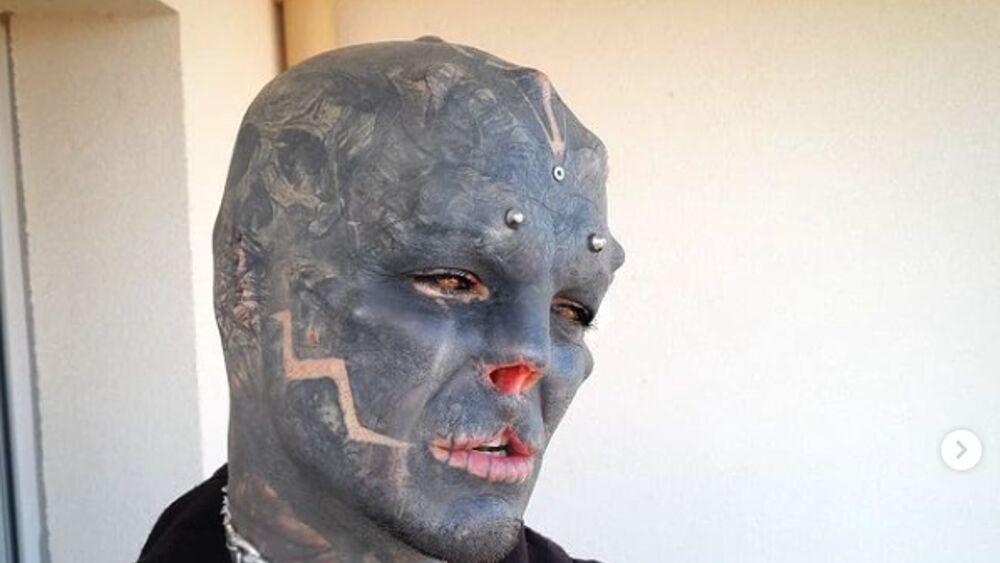 L'uomo che vuole diventare un alieno e si è fatto staccare il naso