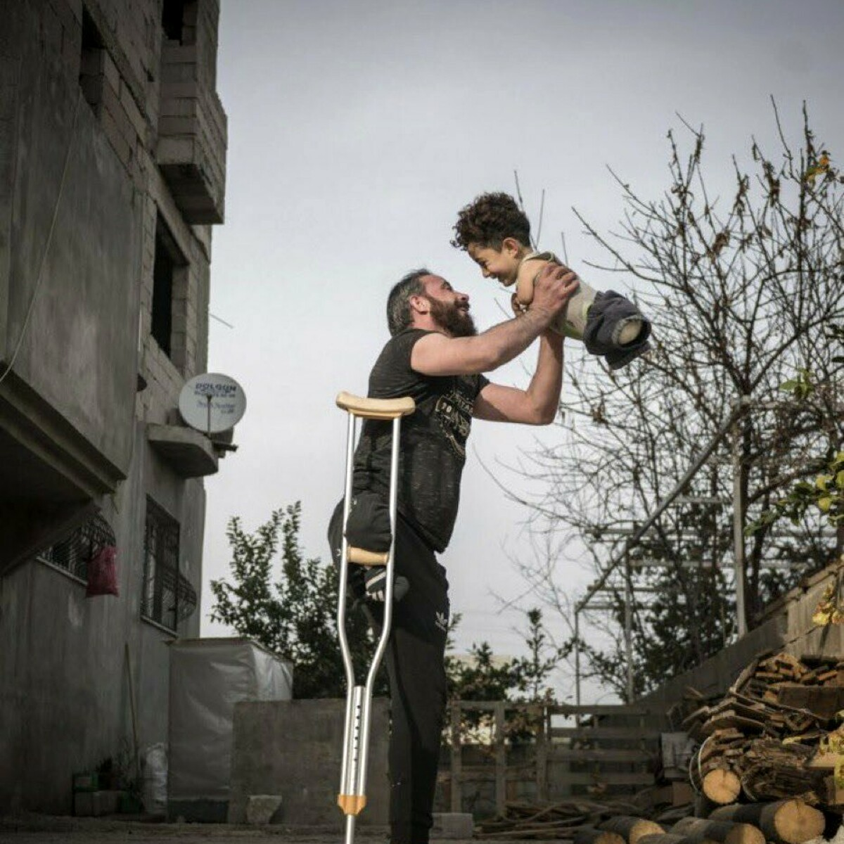 """Papà e figlio senza arti, la foto simbolo della guerra in Siria: """"Svegli le coscienze"""""""